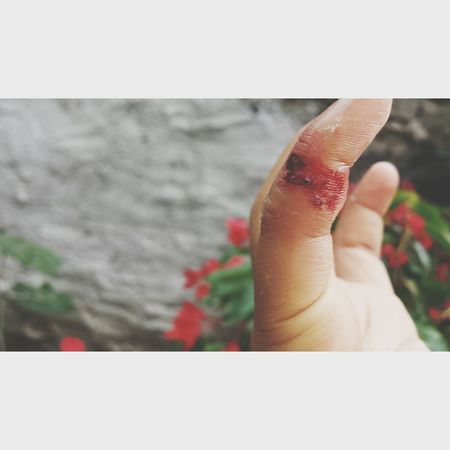 heridas que si se curan :) Herida Sangre Dedo