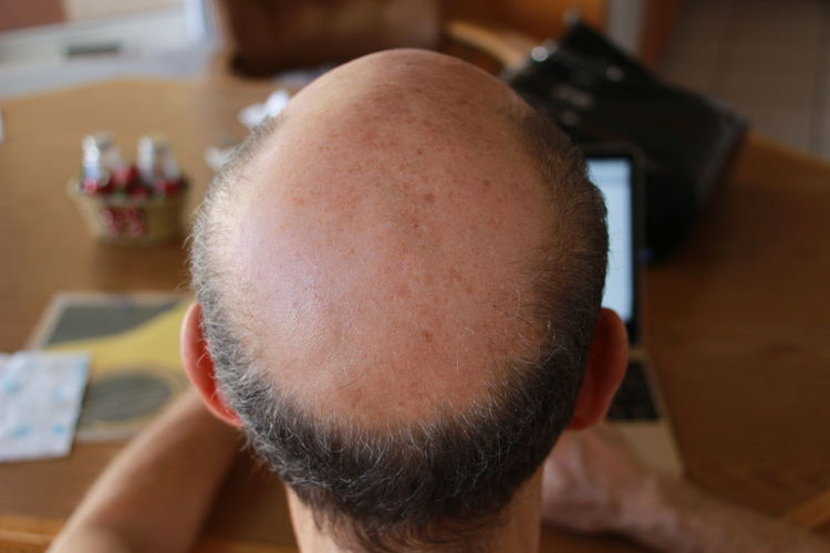 Close-up of man with receding hairline sitting at table