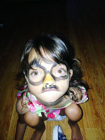 Those eyes!! Look@thoseEyes wolfhirschhornsyndrome
