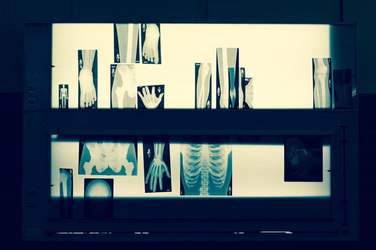 Lightbox with bones pictures for the doctor to check your disease Bones, Care Clinic Disease Doctor  Exam Finger Hand Health Hip, Hops & Drops Hospital Laborathory Leg Lightbox Medicine Oldschool People Professional Radiography Radiologist Ray Sepia Technology White X-Ray