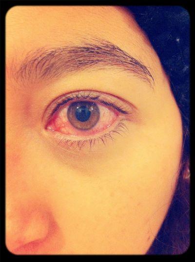 Red Eye Tired Eyes  Eye