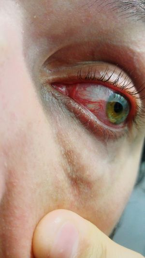 Cropped image of woman with sore eyes