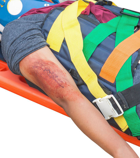 patient Injury upper arm in stretcher isolated on white background and clipping path Gauze Medical Mishap Lesion Lesionada... Body Part Close-up Equipment Human Body Part Human Limb Patient Rescue Safety Stretcher Trauma Urgency