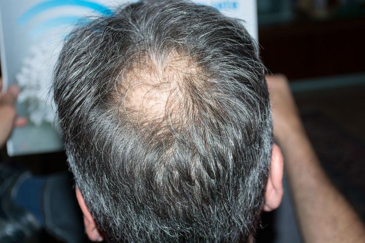 Close-up of balding man