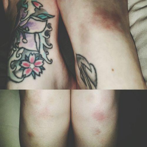 Pole dance bruises. Bruised Bruises Feet Knees Poledance Pole Tricks Polefitness Tattoo Girlswithtattoos This Shit Hurts Hurts