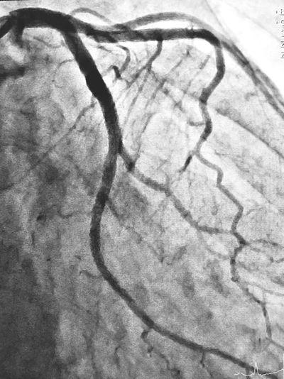 Cath Lab Cardiology Medical Heart Vessel Coronary