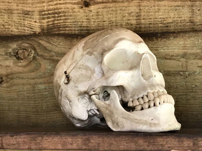 Bone  Human