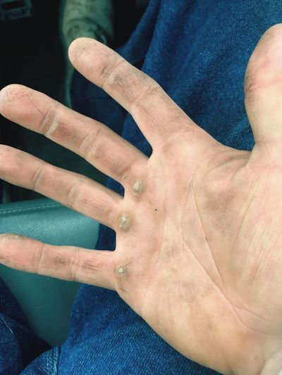 Honest Life Hard Work Manual Labor Calloused Hand #workinghands