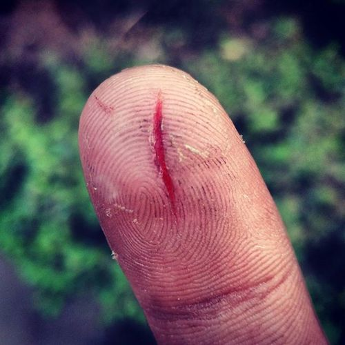 Seems like that was sharp.. Sharp Pointy BLOODY Awesome Wounds