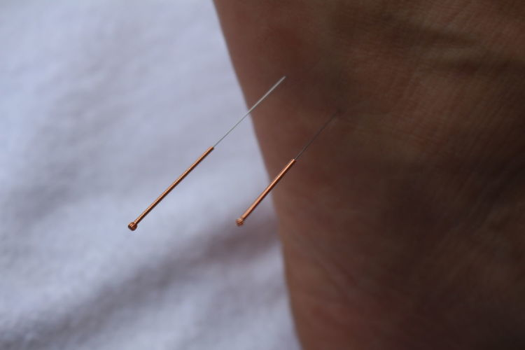 Close-up of needle on hand