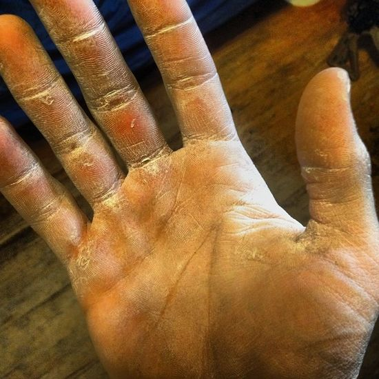 You can tell my hands get used...quite a bit. Workinhands Callouses Rough Chalk