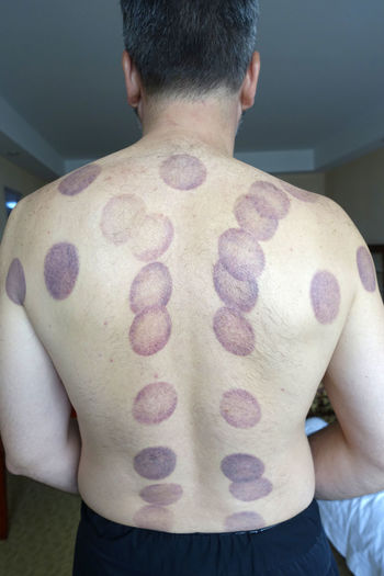 Rear View Of Shirtless Man With Vacuum Cupping Scars