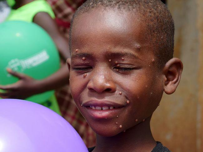 Mpara Uganda School Child Portrait Childhood Headshot Human Face Close-up Balloon This Is My Skin