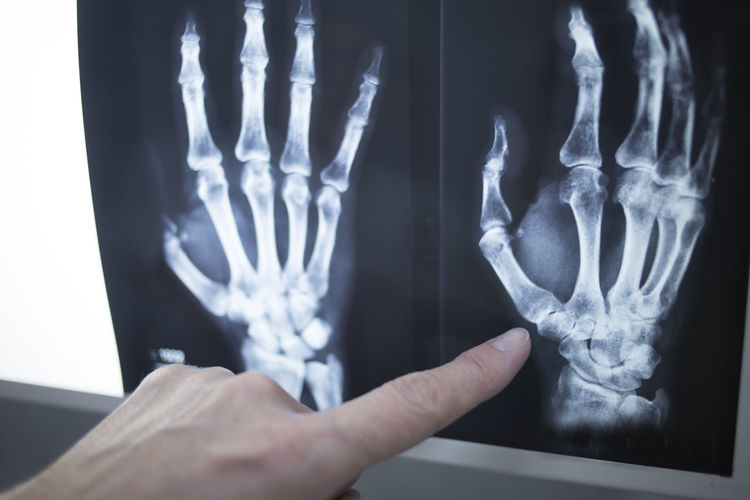 Cropped hand of doctor showing x-ray image in hospital