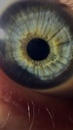 This is my eye