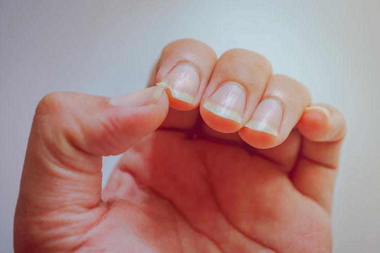 The nail at the