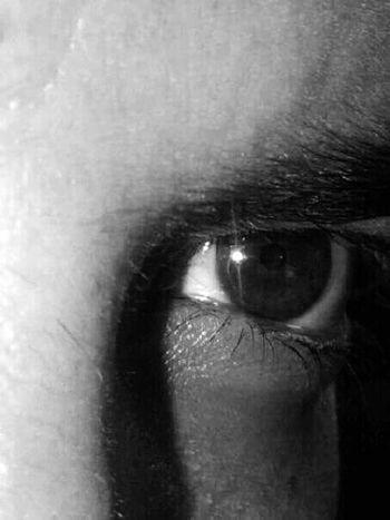 My eye Myeye