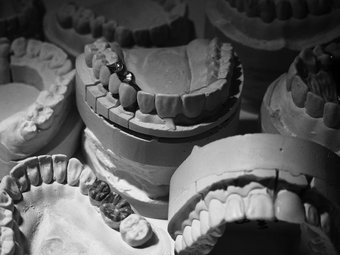 High angle view of dental molds on table