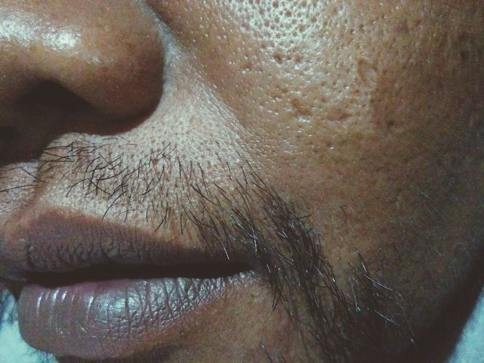 Skin Condition Close-up Acnetreatment Skin Problems