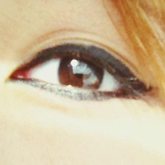 My eye???