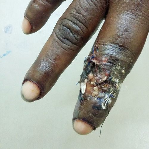 Active infection with live maggots in situ in adult male (fish vendor) approximately 7 days after receiving laceration by fish bone. Guyana Southamerica WestIndies Tropics Medicallife Healthcare Lifestyle Fish Infection Medical Medicine