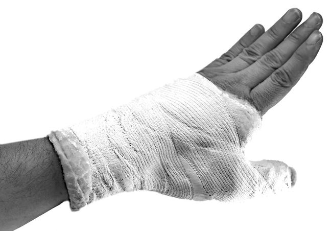 Hand with a broken thumb and white cast to immobilize the broken limb during a traffic accident with black and white effct Broken Bone Broken Bones Injured Man Medicine Bandage Black And White Blackandwhite Bone  Boy Broken Finger Fracture Fractured Hand Holding Human Body Part Injury Patient People person Plaster Trauma Wounded