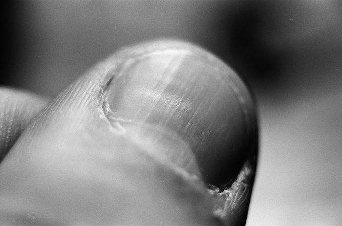 Thumb 35mm Close-up Film Human Hand Macro Thumb Tacks