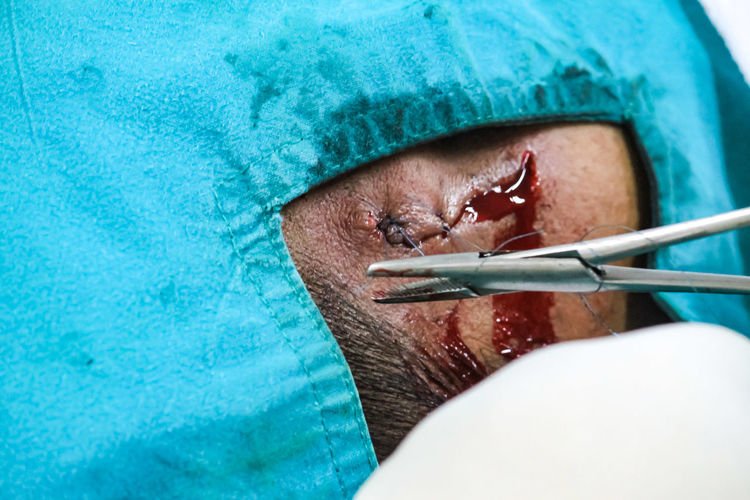 Close-up of person getting surgery