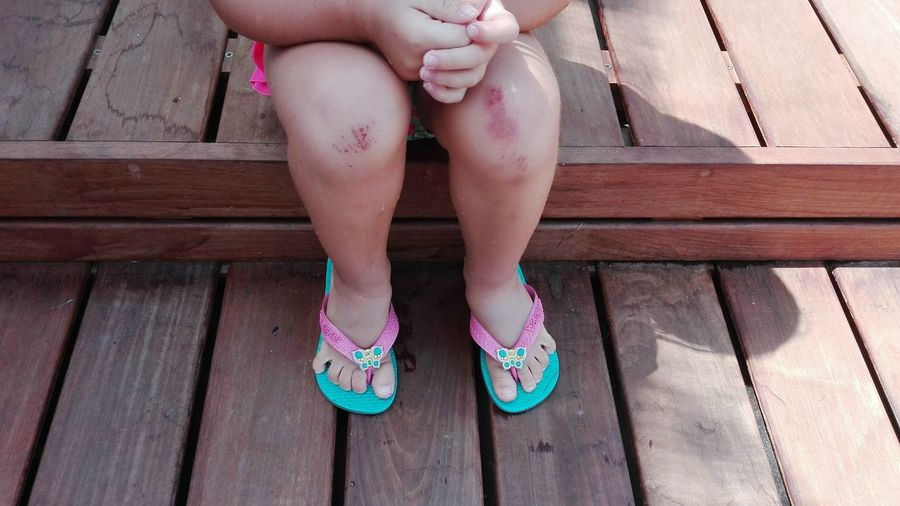 Human Body Part Low Section Human Foot Human Leg One Person People Pink Color Day Lifestyles Leg Outdoors Sitting One Girl Only Child Children Only Childhood Knees Wounds