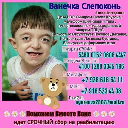 У Вани Врожденный синдром Крузона,требуется 150 000 руб на реабилитацию ,просим всех кто может Помогите!!