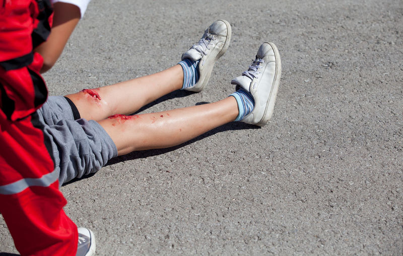 Low Section Of Man With Wounded Leg On Road