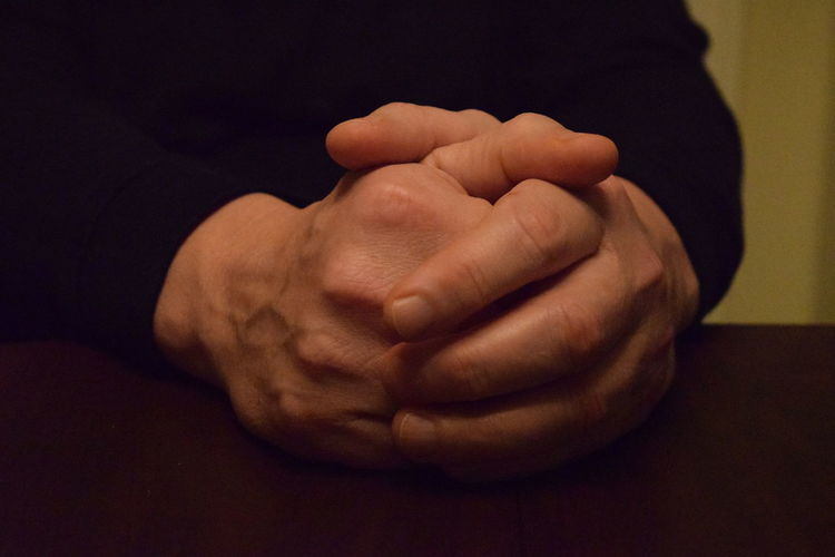 Clasped Hands Expressive Hands Aged Aged Beauty Elderly Old Patient