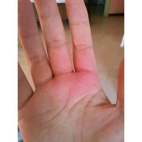 Dang! Stupid me I burnt my hand while baking carrot cake for Papa's Burfdayyy. :'( TMI, I know. It just hurts. lol Burnthand Burns Sakit Tangakasi