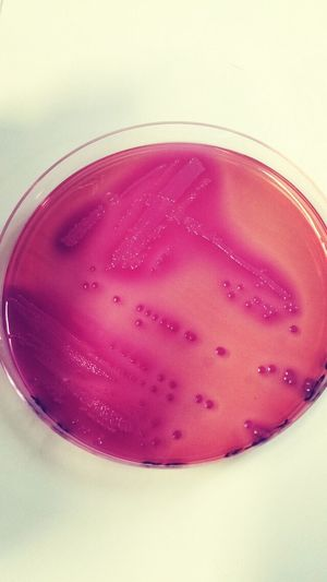 Taking Photos Microbiology Nature Check This Out