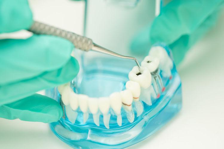 Cropped hands of dentist examining dentures