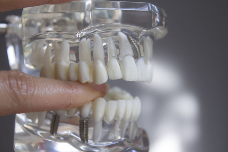 Cropped hand pointing at dentures over gray background