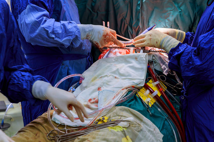 Midsection of doctors performing operation on patient in operating room