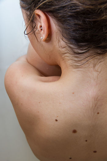 Rear view of shirtless woman with wart