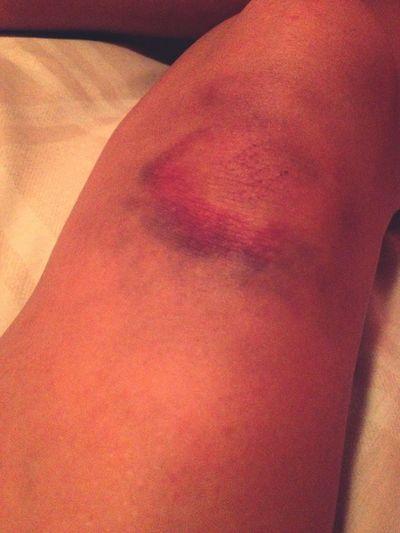 Kick Butt Bruise