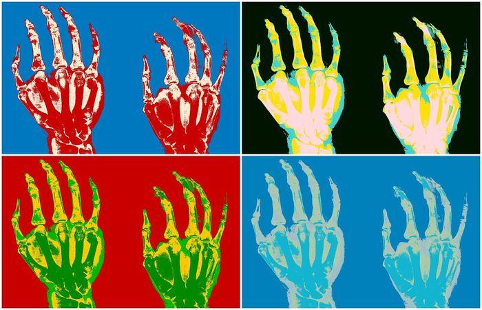 """Warhol broken fifth metacarpus"" Digital Composite Collage Composite Image Multiple Image No People Broken Metacarpus Metacarpus Broken Bone Bone Collector Bone  Bone  Bones"