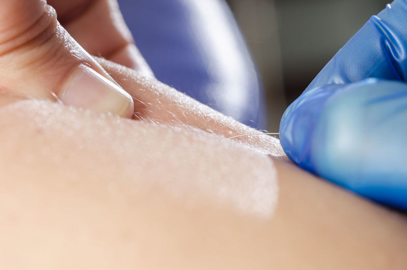 Cropped Hand Of Physiotherapist Applying Acupuncture Needle On Skin To Patient