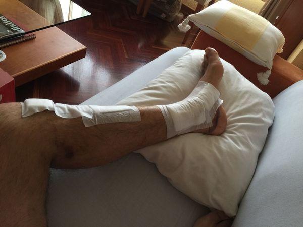 Accident Parapente Paragliding Relaxing Recuperating Recuperation Recuperación