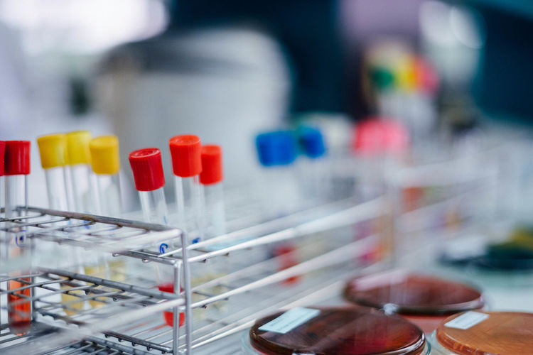 Close-up Day Healthcare And Medicine Indoors  Laboratory Laboratory Equipment Large Group Of Objects Medical Research No People Research Science Scientific Experiment Test Tube Test Tube Rack Variation