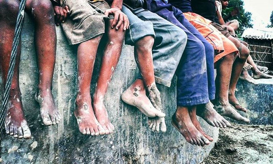 Crazy Feet Indiapictures Instagram Photographer Pushpamverma Indianvillage Villagelife Crazy India