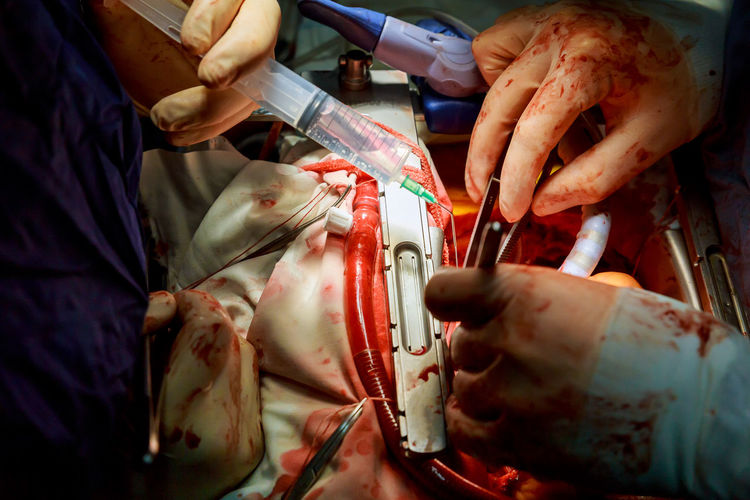 Cropped Image Of Surgeons Operating Patient