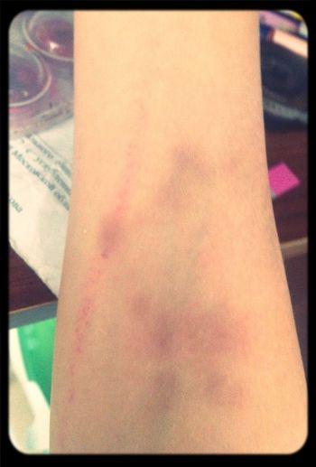 Hi! That's My Hand Bruise omg... I'm a loser:(