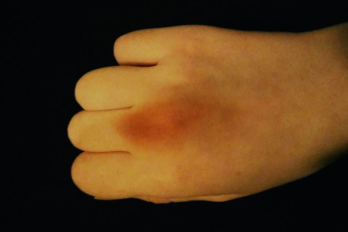 Human Body Part People One Person Black Background Adult Close-up Bruise Bruised Bruises Broken Bone Fight Fighting Street Fight