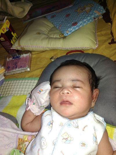 ngantuk akut DMN