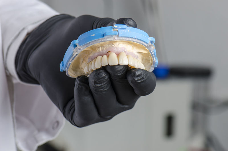 Cropped hand of dentist holding dentures