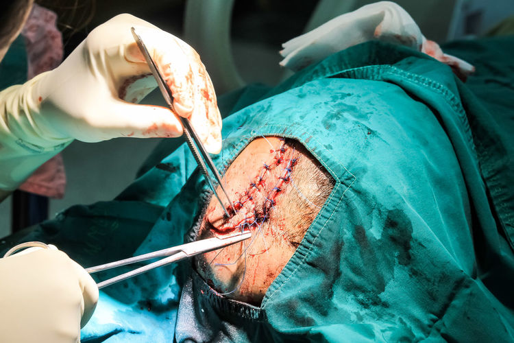 Cropped hand of doctor doing patient surgery